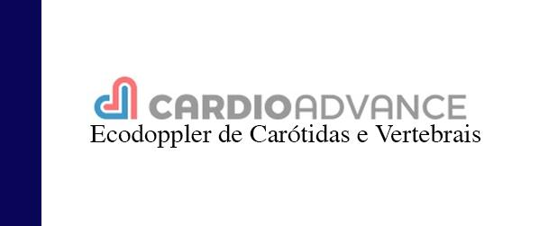 CardioAdvance Ecodoppler de carótidas e vertebrais em Brasília